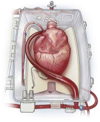 Ex vivo perfusion for donor organs: a BBC Tomorrow's World special